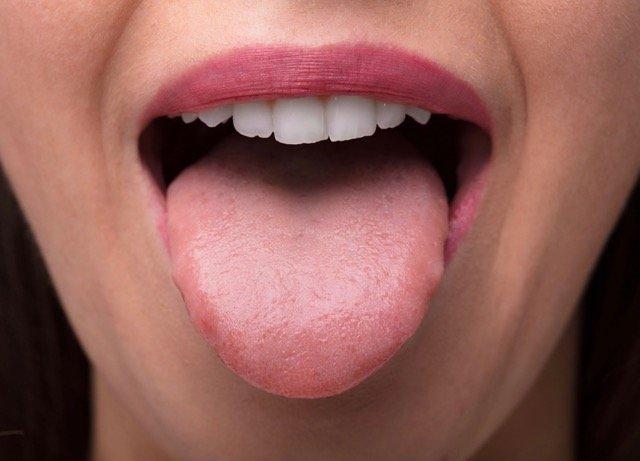 Blaue Zunge Morgens